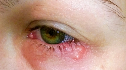Healthy Life:  7 Types of Eye Infection require different treatments